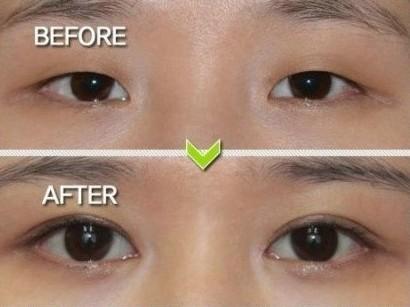 内双变外双前后-埋线双眼皮要花多少钱