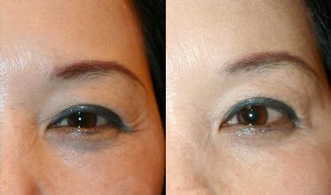 去眼部皱纹办法中效果好的是哪种 Yestar武汉艺星整形美容医院