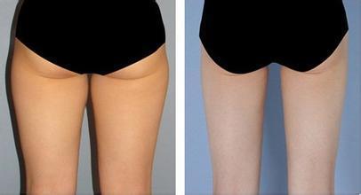 臀部在我们的人体结构中起到承上启下的作用,肥胖的臀部外观肥大丰腴