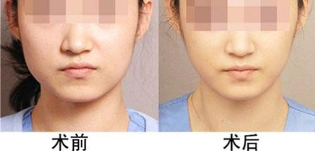 瘦脸针美容效果