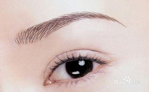 做双眼皮手术后眼睛会肿吗