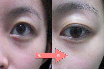 黑眼圈的形成_形成黑眼圈的原因