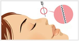 武汉线雕隆鼻手术有哪些优势
