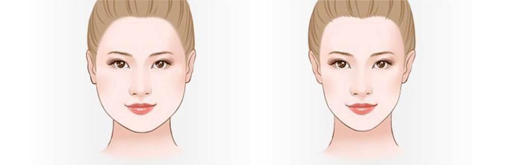 打了一次瘦脸针就有瘦脸效果么