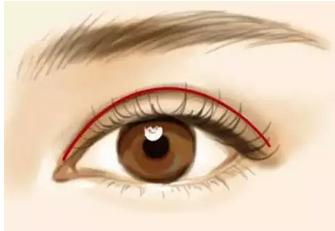 兴义双眼皮有几种款式
