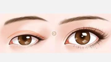 兴义双眼皮手术多久恢复